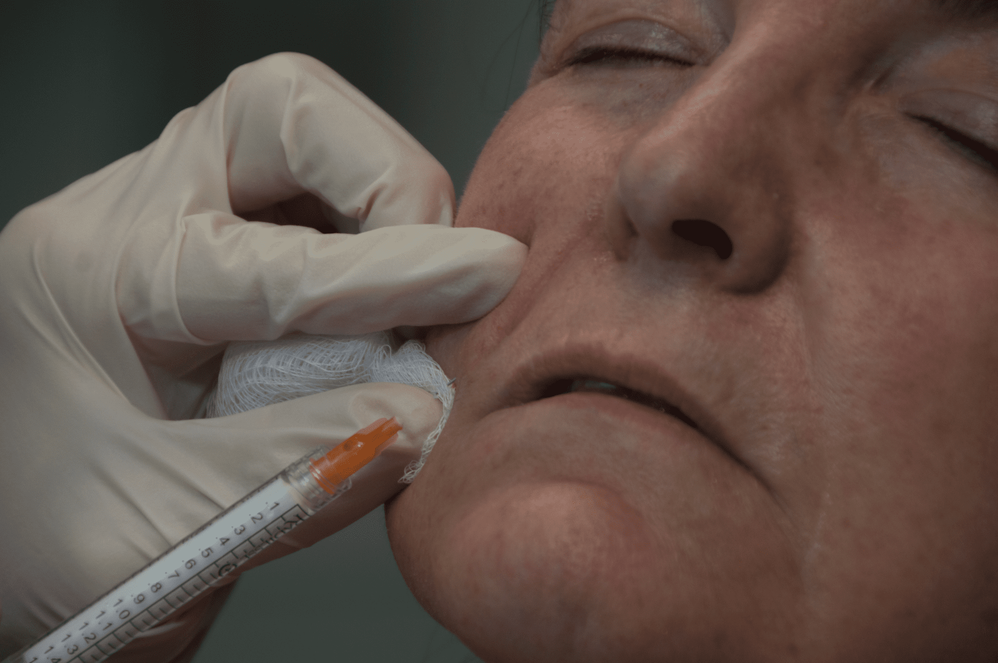 Radiesse® - Aesthetic & Dermatology Center