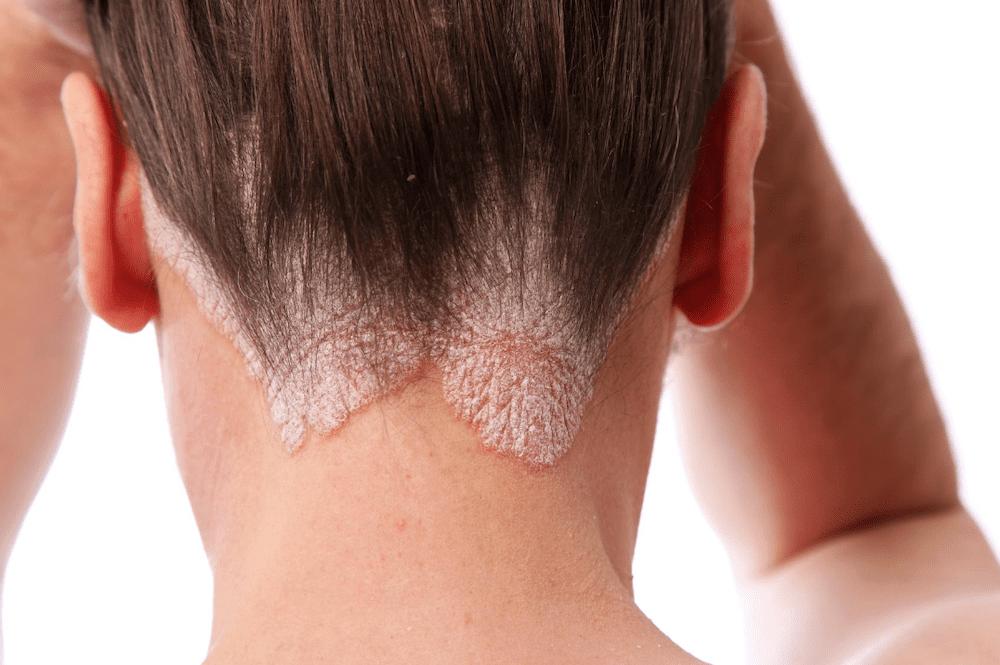 Psoriasis Awareness Month: Psoriasis Treatment