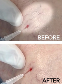 Spider Veins treatment - before and after