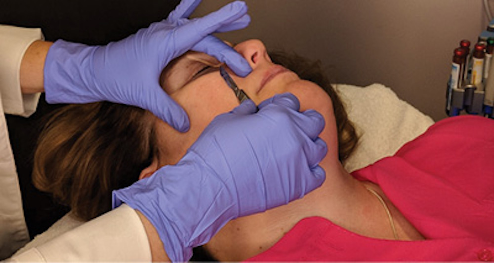 Dermaplaning: Non-Invasive Treatment for Glowing Skin