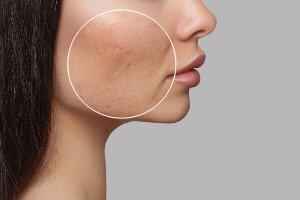 Acne Scarring Treatments, Solutions, & Prevention