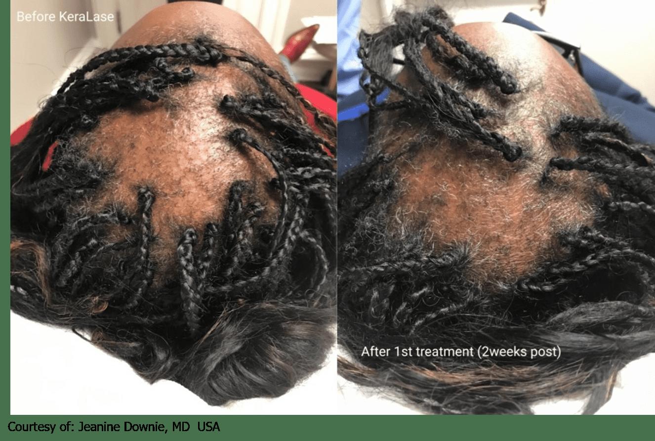 hair-loss-hair-growth