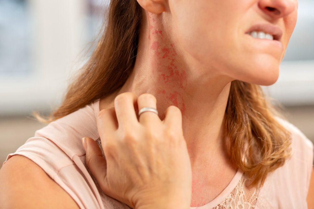 allergy-skin-rash