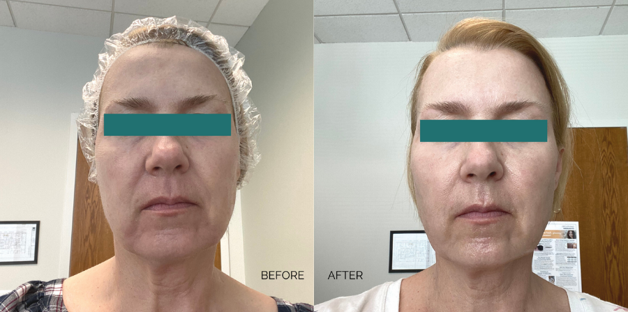 genius-microneedling-treatment-before-and-after
