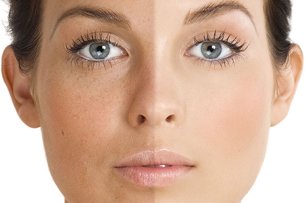 Treating Uneven Skin Tone
