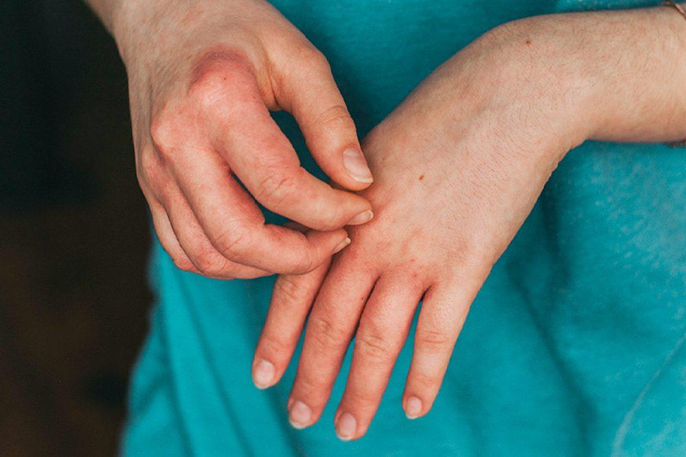 eczema-flare-ups