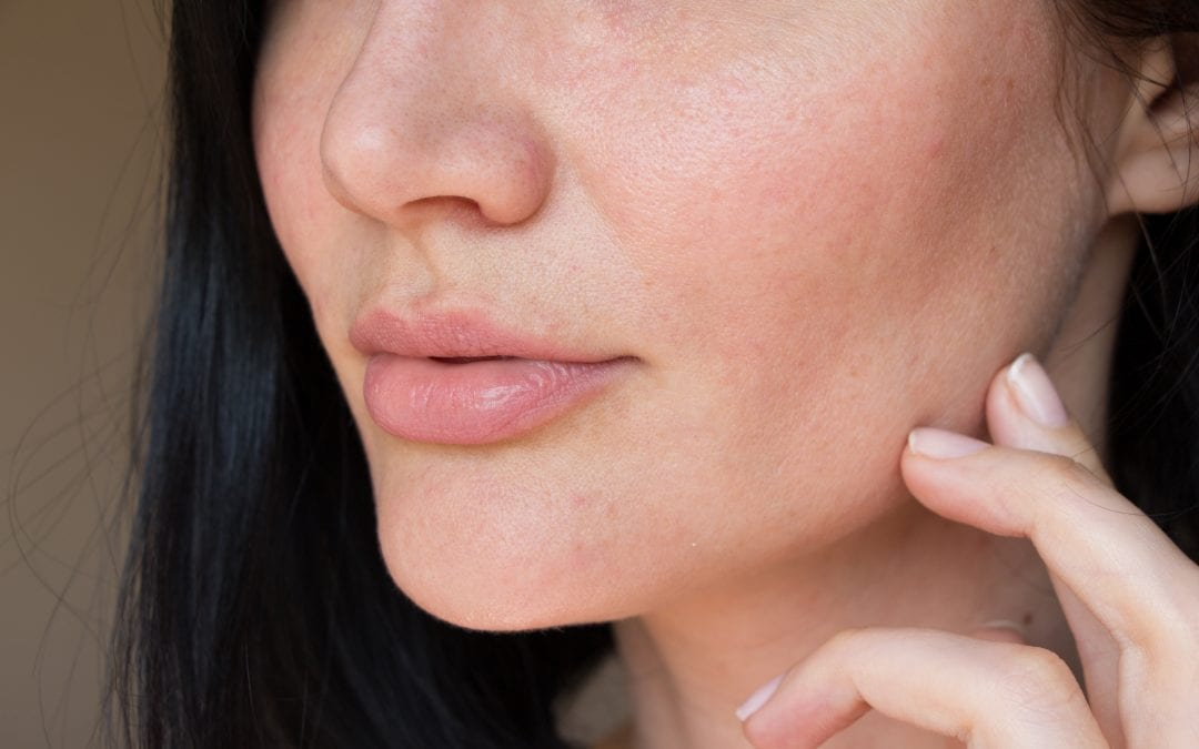 How To Treat Your Pores