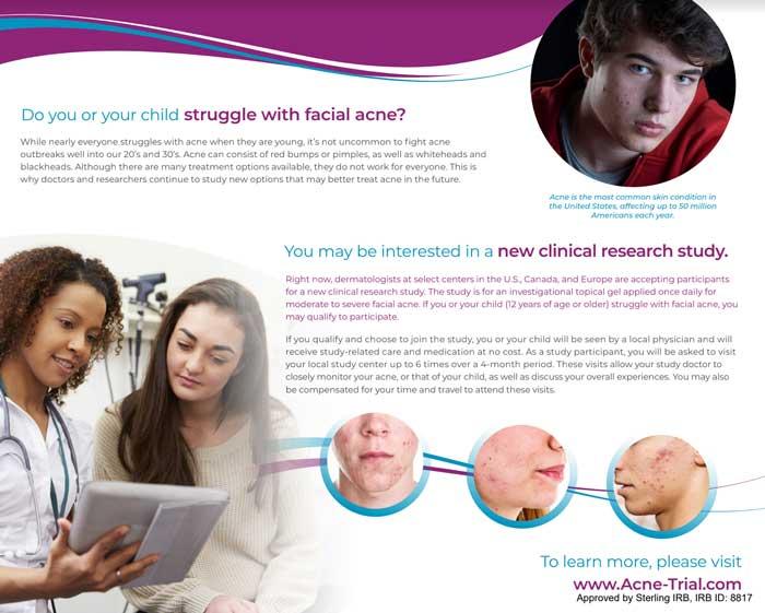 Acne Clinical Trial
